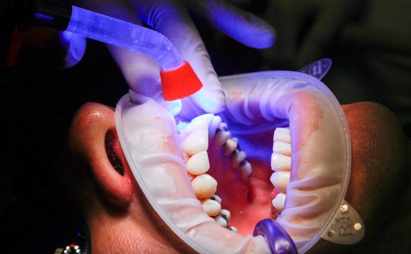 Zła droga odżywiania się to większe niedobory w jamie ustnej oraz dodatkowo ich brak